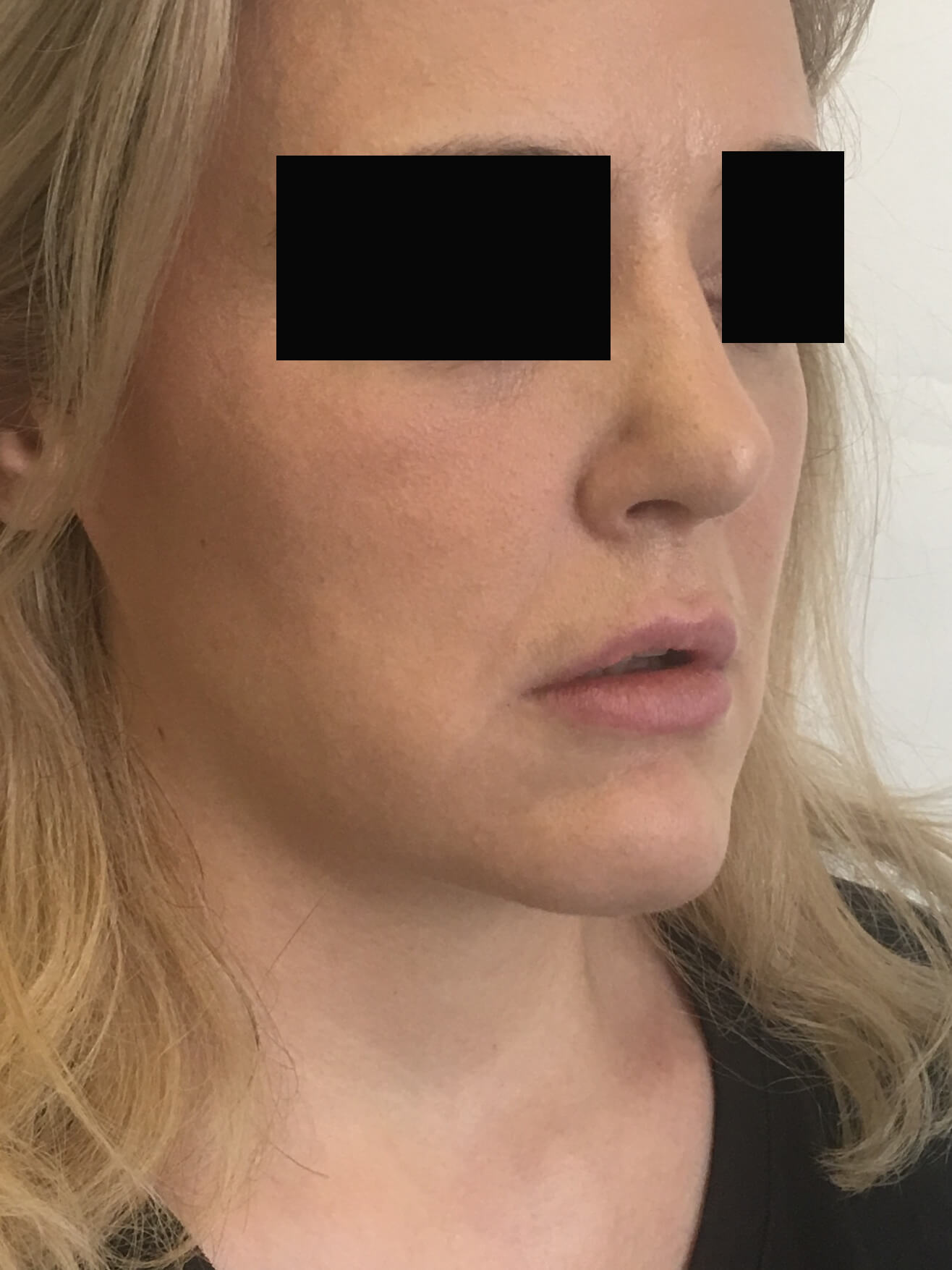 Face fat grafting Sydney Dr Simone Matousek Plastic Surgeon, PhD