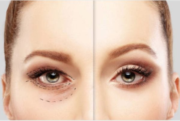 Dr Simone Matousek Plastic, Reconstructive and Cosmetic Surgeon eyelid lift