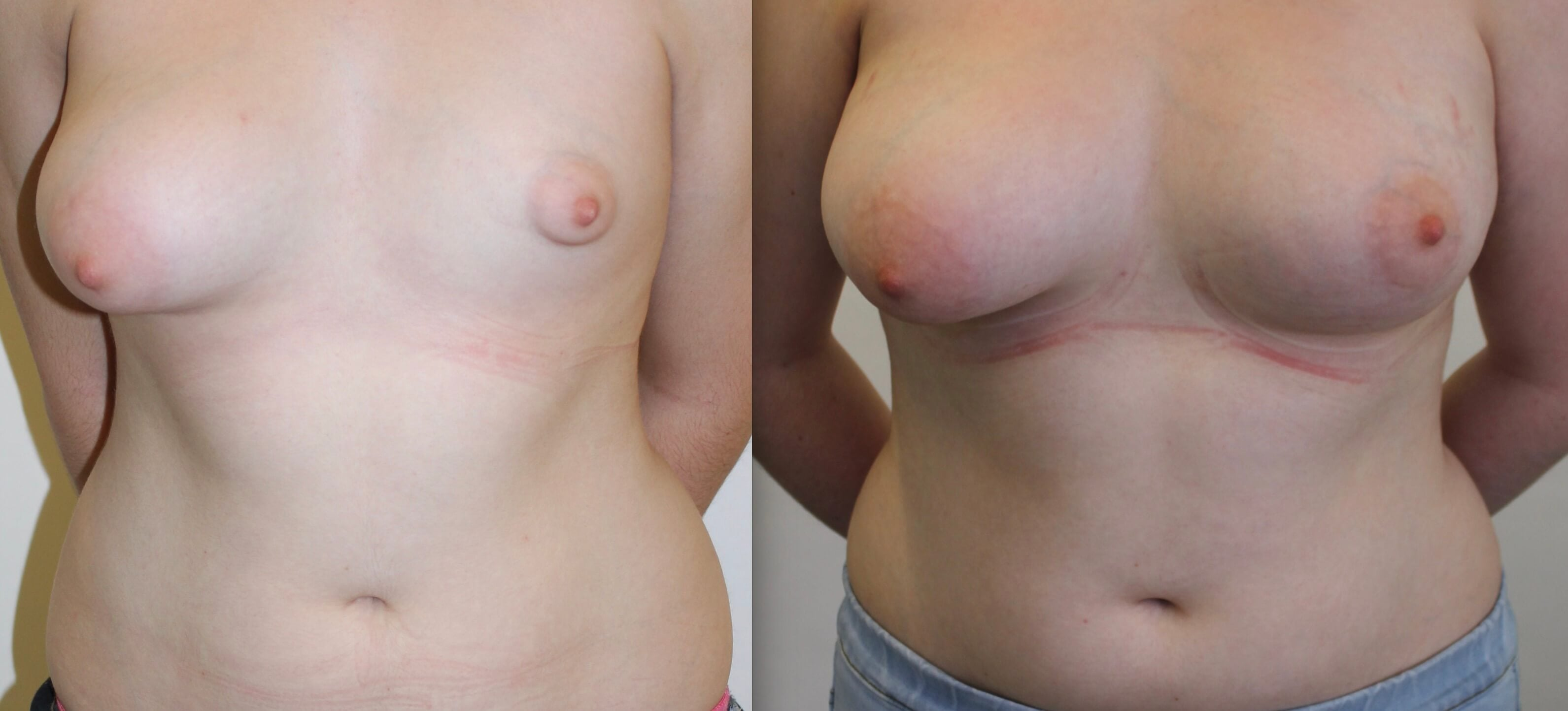 Tuberous-breast-correction-Sydney