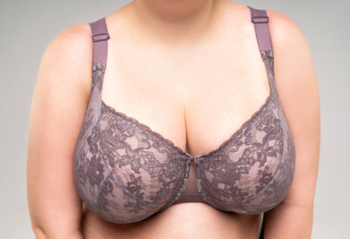 Best-breast-reduction-Sydney